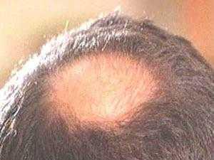 اكتشاف سر تساقط الشعر لدي ملايين البشر